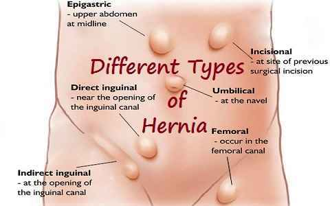 Dr  Harshad Mahatme : Hernia Surgeon in Nashik